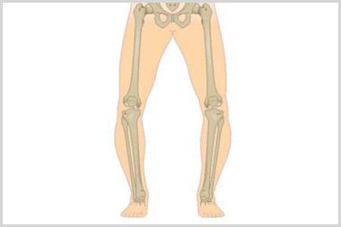 genu varum (bowed legs)